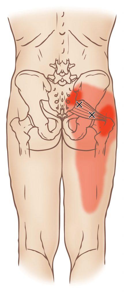 απιοειδής μυς trigger point | Φυσικοθεραπεία Γέρακα | Φυσικοθεραπευτής